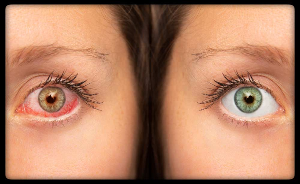 Glassy and red eye comparison