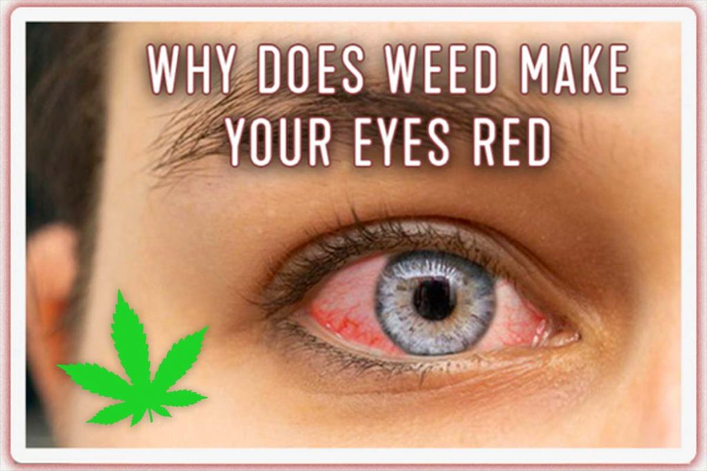 why-does-weed-make-your-eyes-red